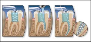 Лечение каналов зубов