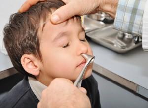 Удаление инородных тел из носа