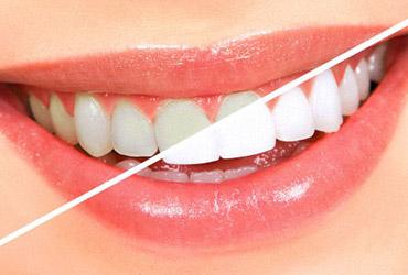 Способы профессионального отбеливания зубов