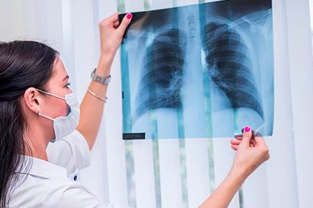 Туберкулёз: причины, симптомы, лечение
