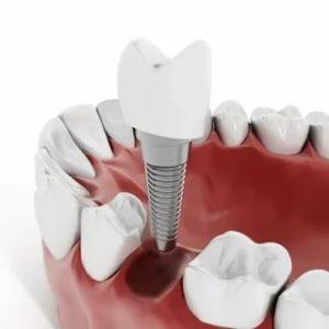 Имплантация зубов Бульвар Рокоссовского