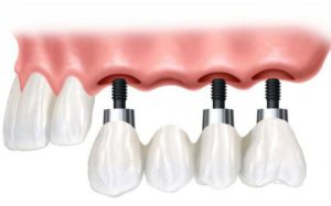 Базальная имплантация зубов, пос. Володарского