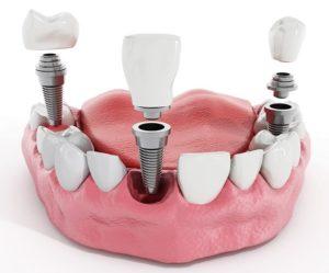 Имплантация зубов Семёновская