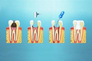 Лечение пульпита зубов метро Семёновская