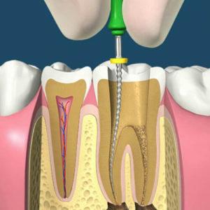 Лечение пульпита зубов пос. Володарского