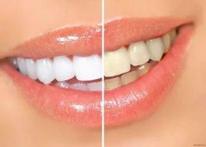 Отбеливание зубов Семёновская