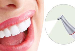 Профессиональная чистка зубов Семёновская
