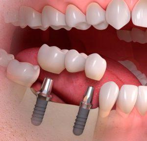 Протезирование зубов, пос. Володарского