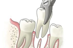 Удаление зуба Семёновская