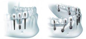 Базальная имплантация зубов в Красногорске