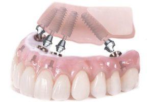Имплантация зубов all on 4 в Красногорске