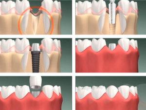 Одномоментная имплантация зубов в Красногорске