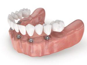 Одномоментная имплантация зубов в поселке Володарского