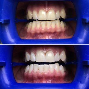 Отбеливание зубов ZOOM