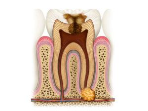 Удаление кисты зуба Красногорск
